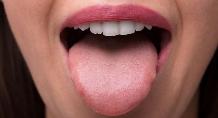 How To Know You're a Supertaster